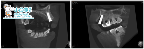 植入后X线片