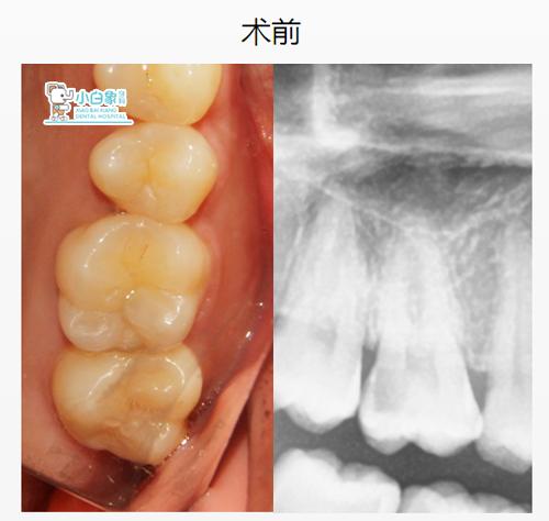 10月补牙病例1