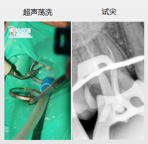 10月补牙病例2