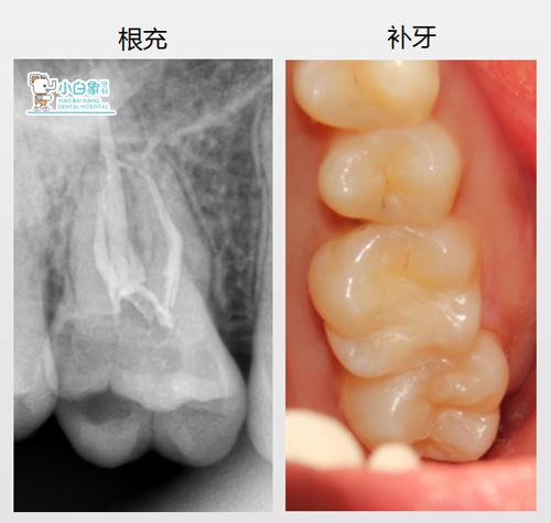 10月补牙病例4